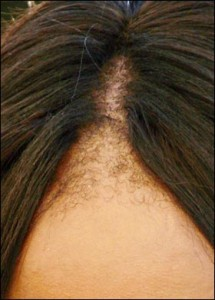 Naomi Campbell's Hairline
