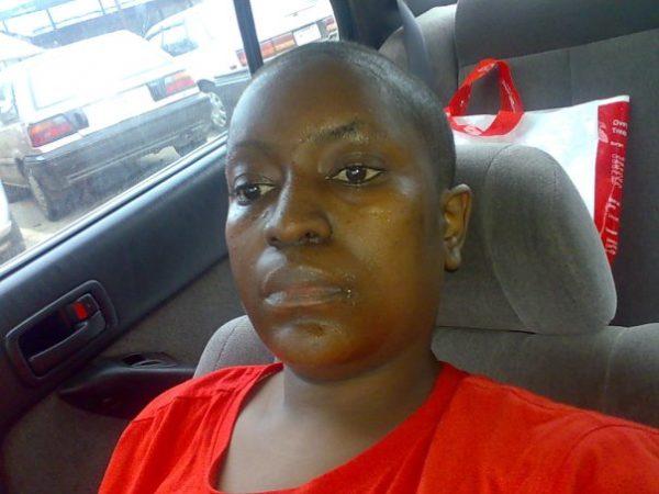 Caroline (After Cancer Diagnosis)