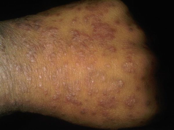 black rash on skin - pictures, photos