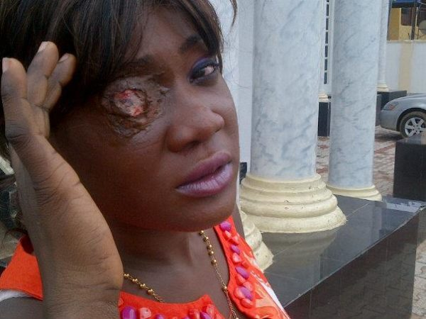 Mercy Johnson Eye