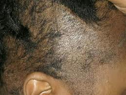 how to fix burnt hair without cutting it
