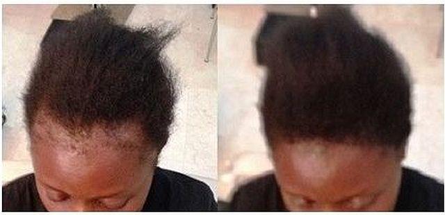 fix for your bald spots damaged hairline super million hair. Black Bedroom Furniture Sets. Home Design Ideas