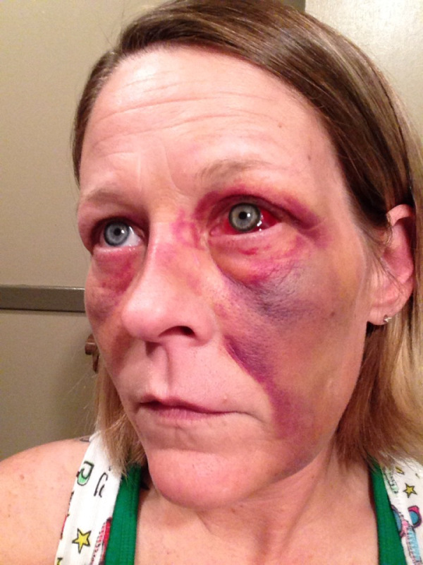 Woman Posts Graphic Photos of Bruised Face by Abusive ... Abbie Cornish Boyfriend