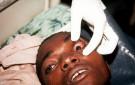Ebola Sypmptoms