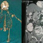 Baby Skeleton - August 2014 - BN News - BellaNaija.com 01