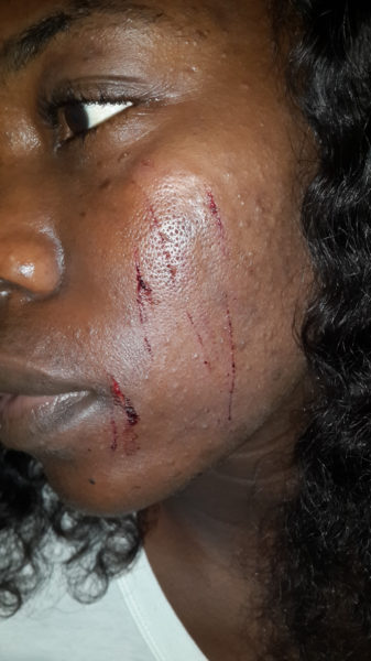 NYSC Corper Brutalized
