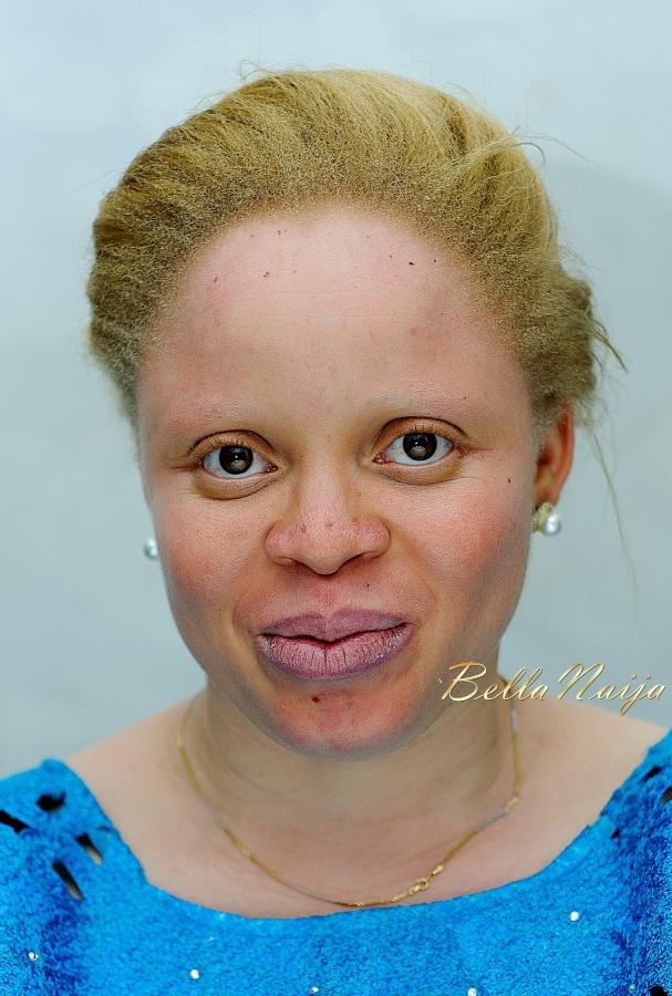 Nigerian Albino Makeover - iPosh Looks on BellaNaija - June 2015 5