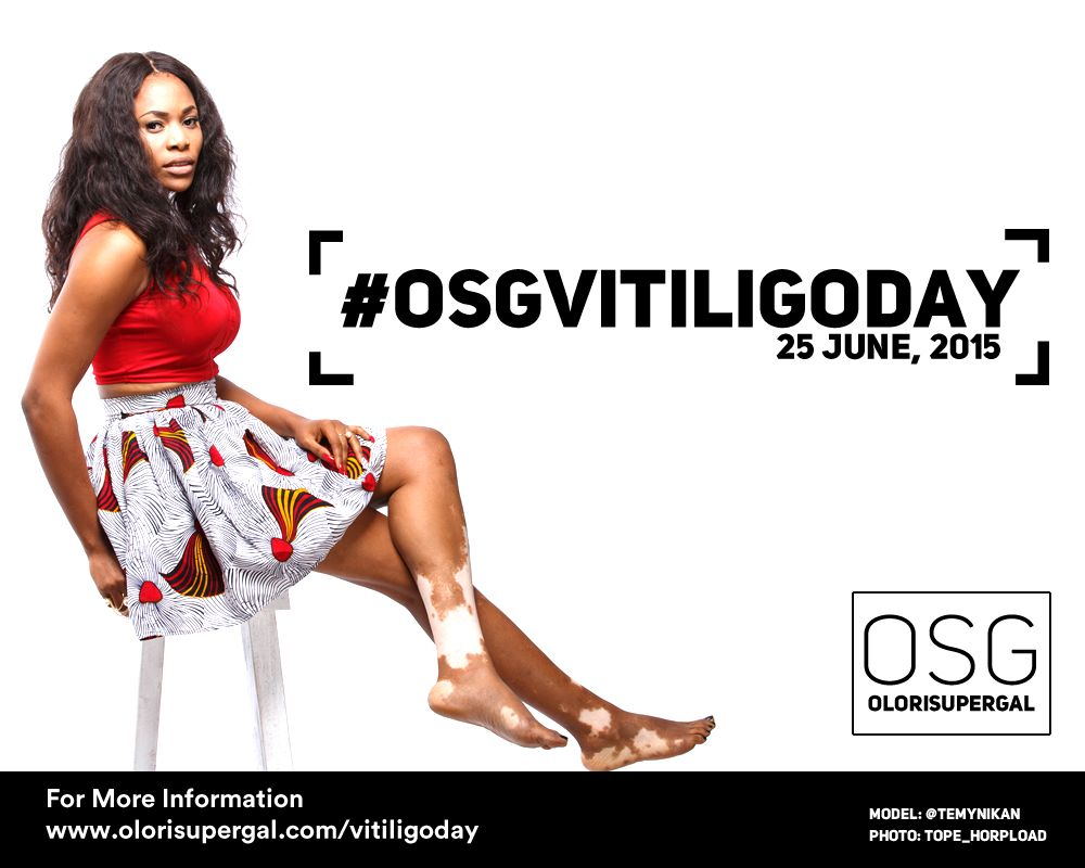OSGVitiligoDay by Tosin Ajibade of Olori SuperGal - BellaNaija - June2015001 (1)