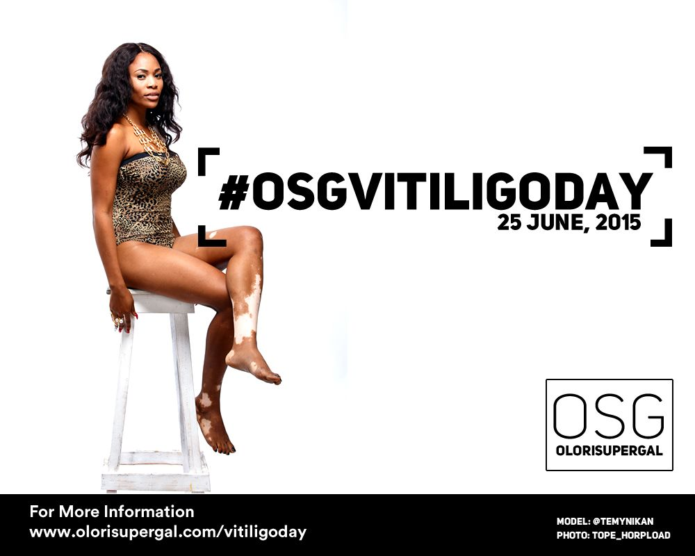 OSGVitiligoDay by Tosin Ajibade of Olori SuperGal - BellaNaija - June2015001 (4)