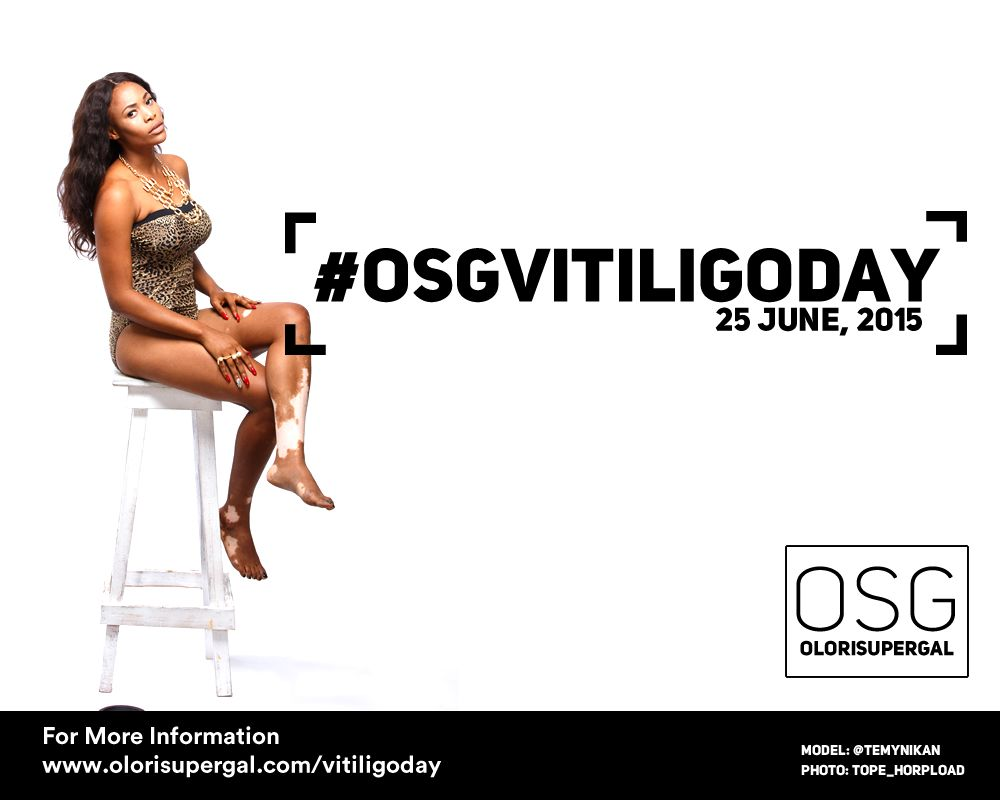 OSGVitiligoDay by Tosin Ajibade of Olori SuperGal - BellaNaija - June2015001 (5)
