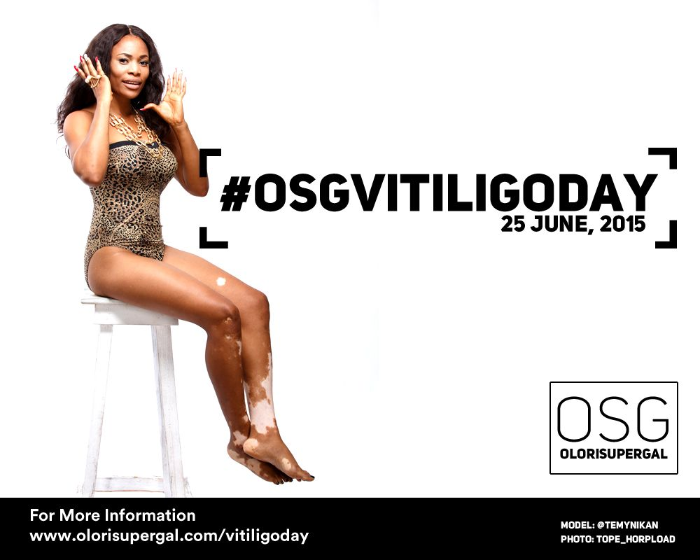 OSGVitiligoDay by Tosin Ajibade of Olori SuperGal - BellaNaija - June2015001 (7)