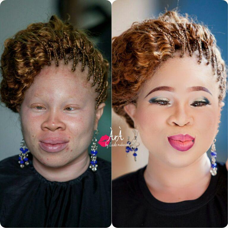 Yes Albino Las Love Makeup Too Ara