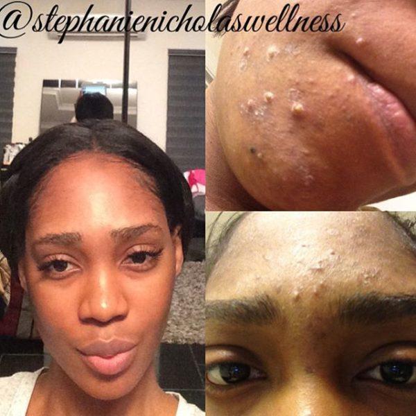 Stephanie Cystic Acne