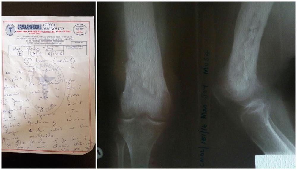 Medical Report & Xray