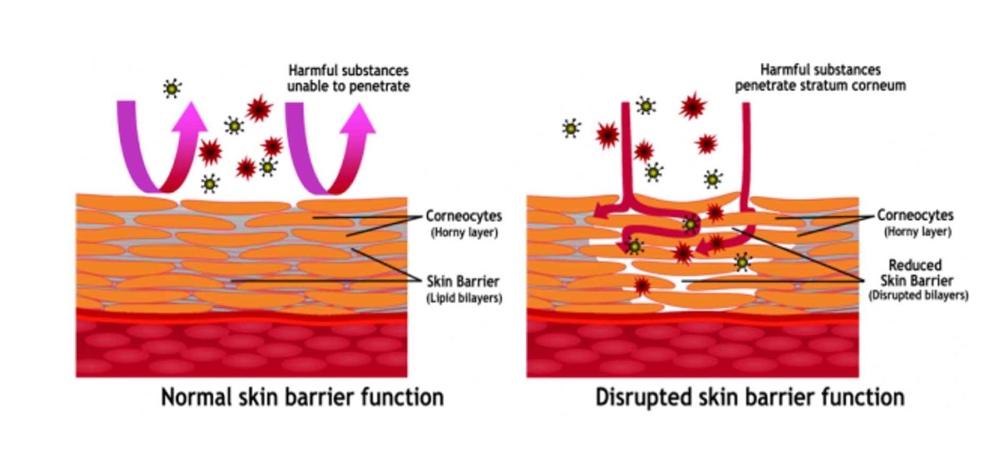 _Image 2 Normal-Skin-Barrier-Function-Versus-Disrupted-Skin-Barrier-Function_bellanaija