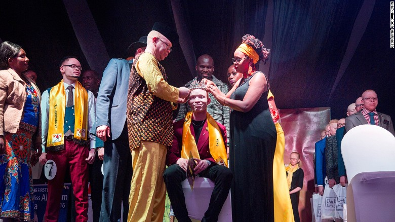 Mr-Miss-Albinism-Kenya 002