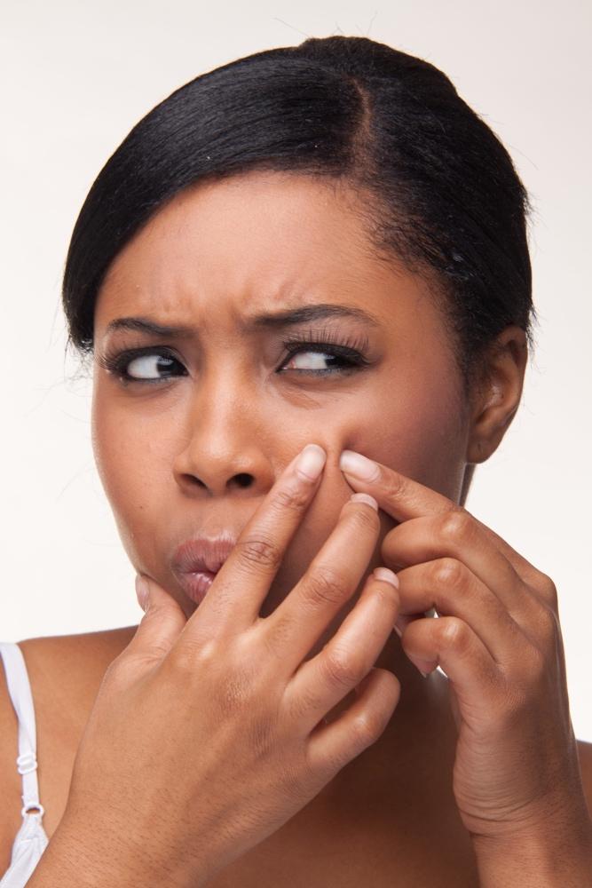 dreamstime_black woman acne skin problem pimples
