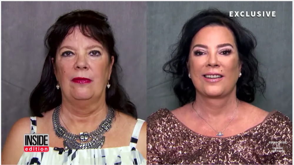 kris-jenner-and-sister-karen-houghton_facelift-3
