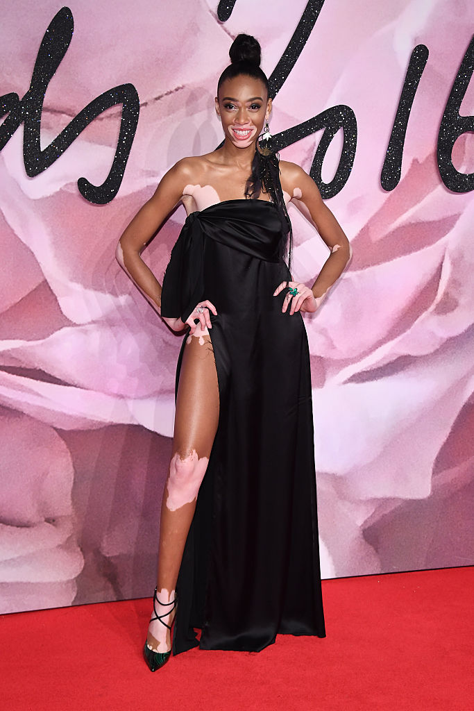 LONDON, ENGLAND - DECEMBER 05: Winnie Harlow walks the red carpet for the British Fashion Awards 2016 on December 5, 2016 in London, England. (Photo by Venturelli/Getty Images for GUCCI)