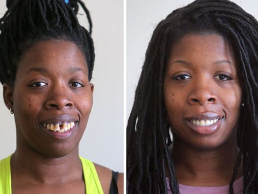 Heartstrings! Woman gets Teeth fixed for Free after being bullied on Social Media - BellaNaija