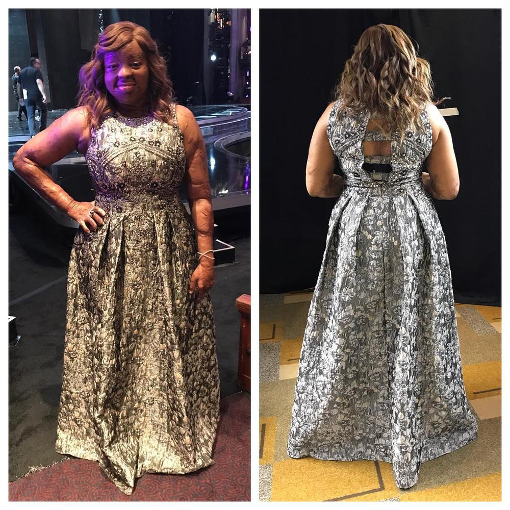 Plane Crash Survivor, Kechi Wows Judges At America's Got Talent Finals