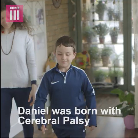 Meet 9-year old fighting Cerebral Palsy with Yoga | Watch