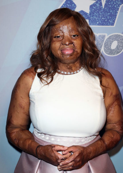 I don't want people to vote for me based on my story - Kechi Okwuchi - BellaNaija