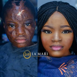 This Burn Victim's transformation will Warm Your Hearts 💕