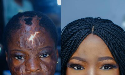 This Burn Victim's transformation will Warm Your Hearts ?
