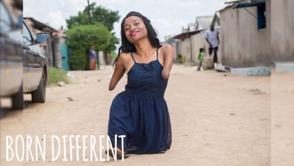 The Inspiring Story of Sinikiwe, a Woman born without Arms and Knees | WATCH 3